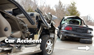 Accident Lawyer Mi
